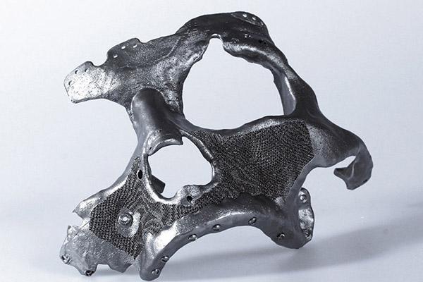 3D metal printed prosthetic facial bone implant