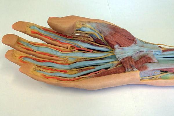 3D printed hand, Star Rapid blog